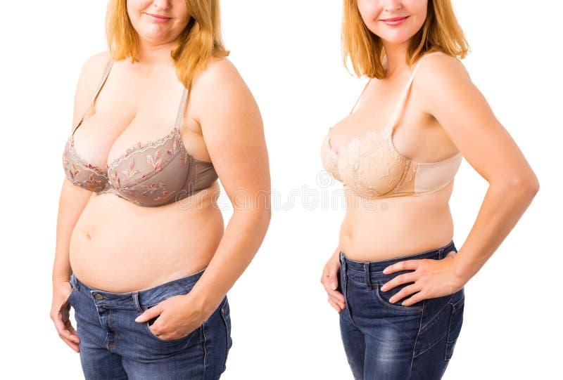 Mujer antes y después de la pérdida de peso fotografía de archivo libre de regalías