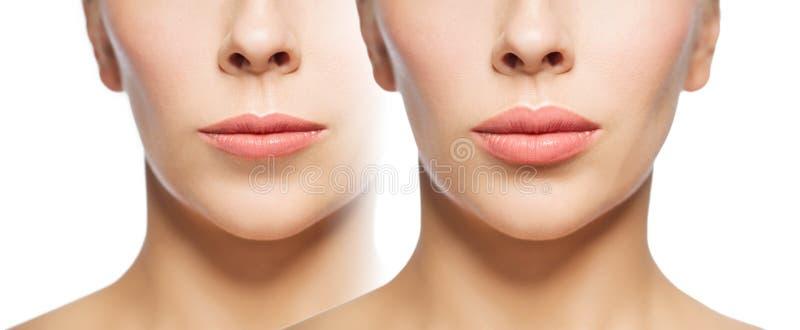 Mujer antes y después de llenadores del labio imagenes de archivo