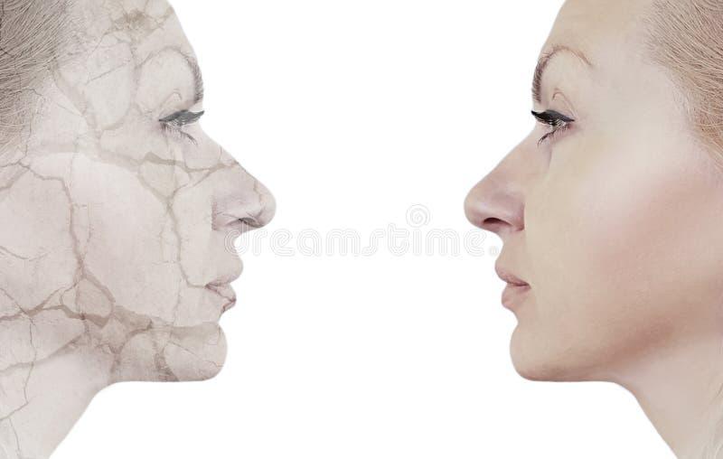 mujer antes y después de procedimientos, deshidratación agrietada imagenes de archivo