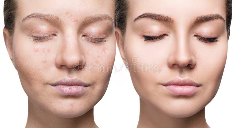 Mujer con acné antes y después del tratamiento y del maquillaje fotos de archivo libres de regalías