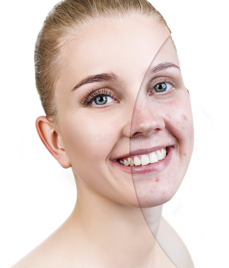 Mujer con acné antes y después del tratamiento y del maquillaje imagenes de archivo