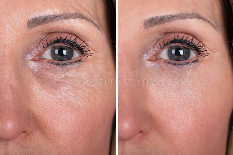 Mujer con antes y después del rejuvenecimiento imagenes de archivo