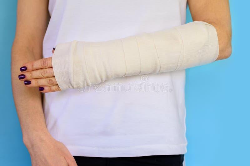 Mujer con el hueso de brazo quebrado en el molde, mano enyesada en fondo azul foto de archivo libre de regalías