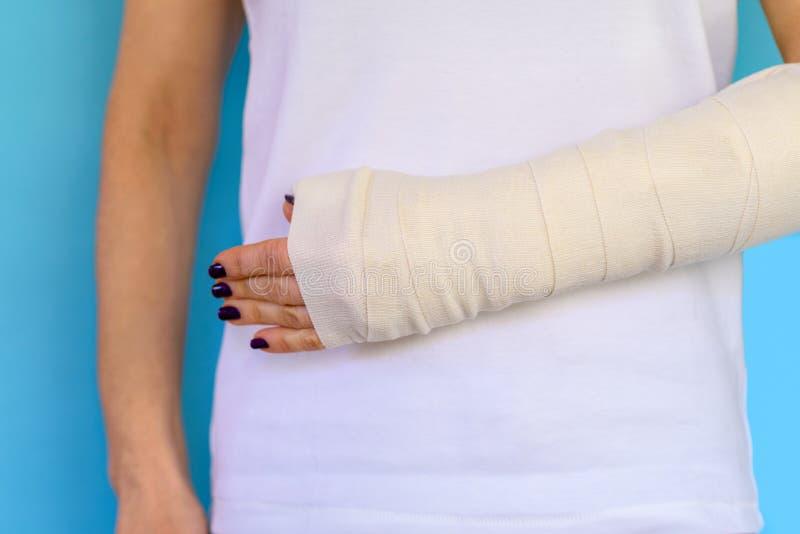 Mujer con el hueso de brazo quebrado en el molde, mano enyesada en fondo azul fotos de archivo libres de regalías