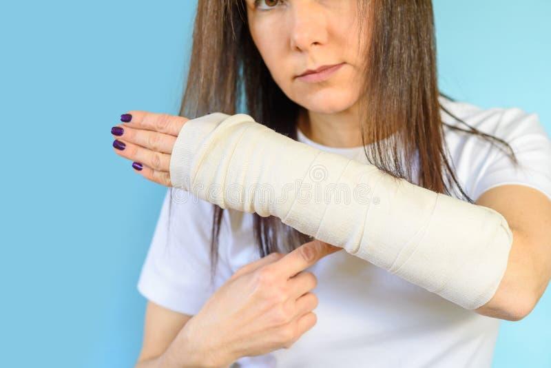 Mujer con el hueso de brazo quebrado en el molde, mano enyesada en fondo azul fotos de archivo