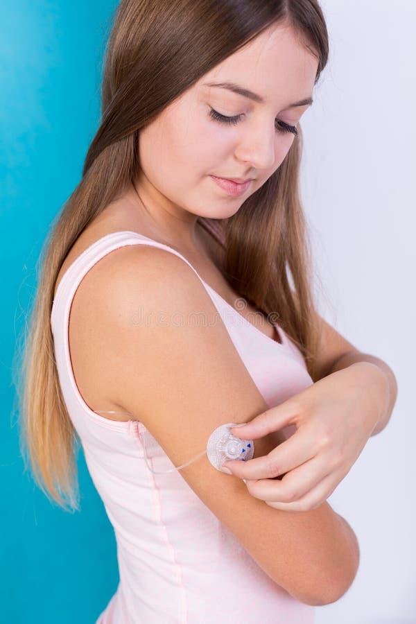 Mujer con la bomba de la infusión de la insulina imagen de archivo
