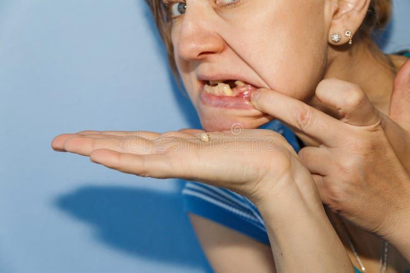 Mujer con la corona caída del diente imagen de archivo