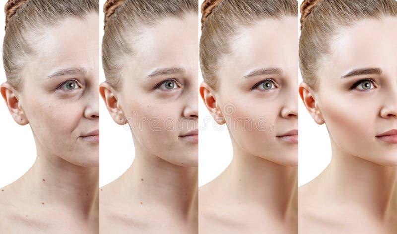 Mujer con la fase de rejuvenecimiento de la piel antes y después del tratamiento fotografía de archivo