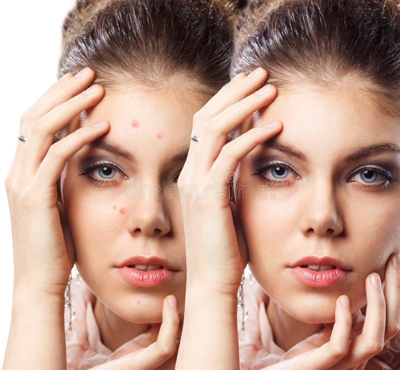 Mujer con la piel del problema en su cara imagenes de archivo