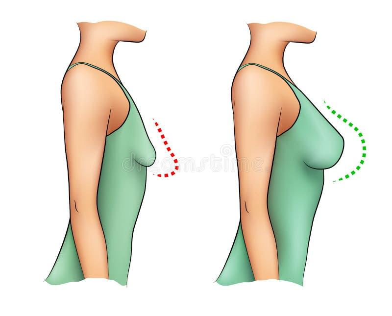Mujer con los pechos pequeños y grandes stock de ilustración