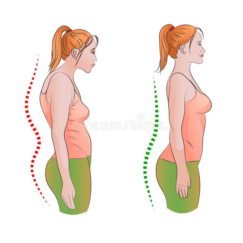 Mujer con postura incorrecta y de la parte trasera derecha libre illustration