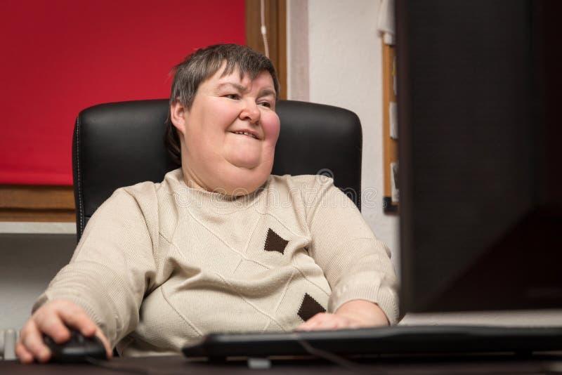 Mujer con una incapacidad desarrollar sentarse en el ordenador, alterna foto de archivo libre de regalías
