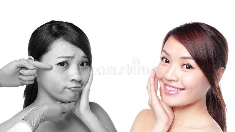 Mujer del cuidado de piel después y antes imágenes de archivo libres de regalías