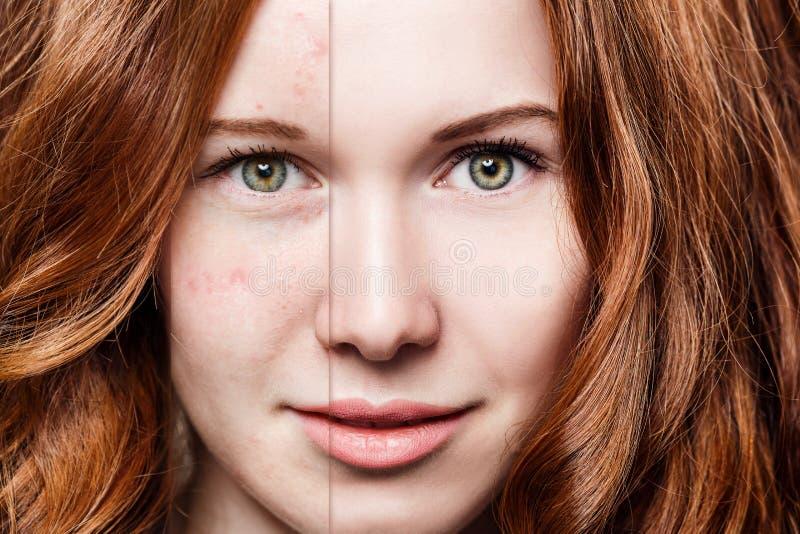 Mujer del pelirrojo antes y después del tratamiento y del maquillaje fotografía de archivo
