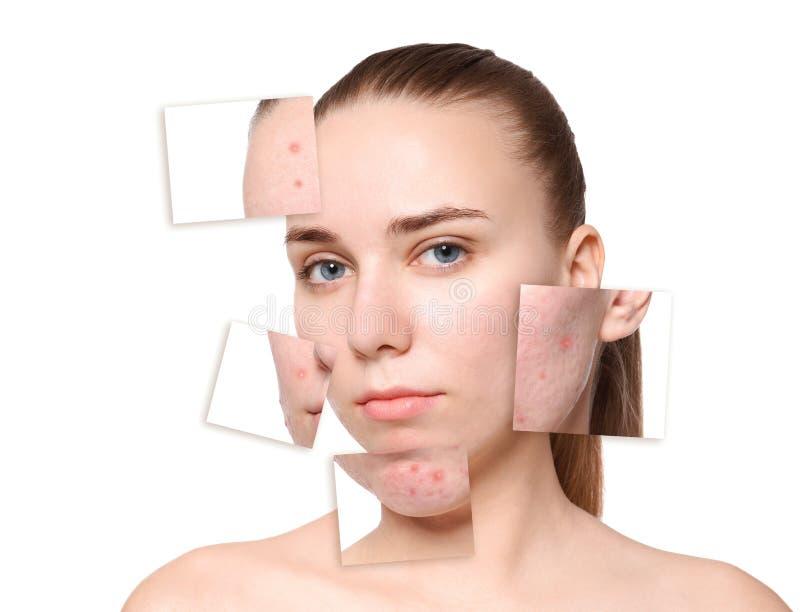 Mujer joven antes y después del tratamiento del acné imagen de archivo libre de regalías