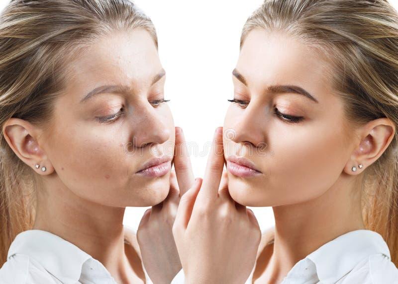 Mujer joven antes y despu?s del tratamiento y del maquillaje de la piel fotografía de archivo libre de regalías