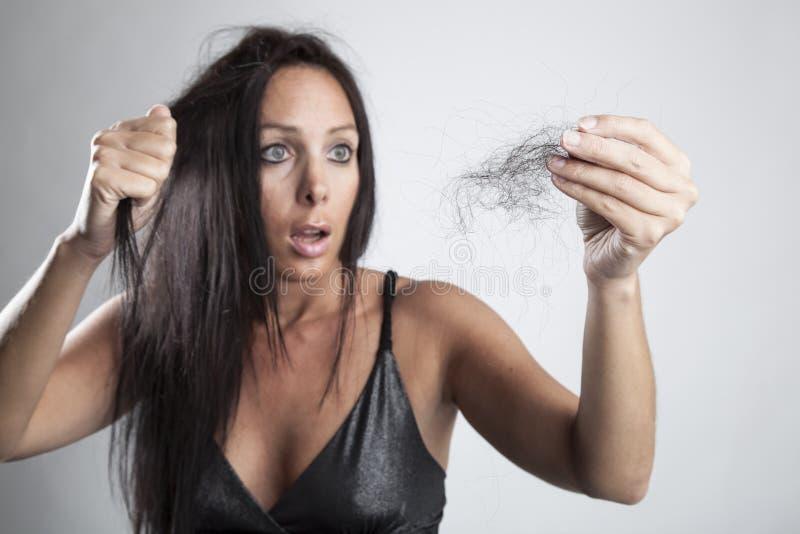 Mujer joven atractiva con pérdida de pelo foto de archivo