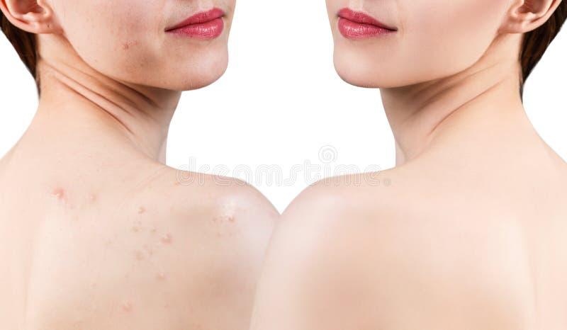 Mujer joven con acné en hombros antes y después del tratamiento imagen de archivo