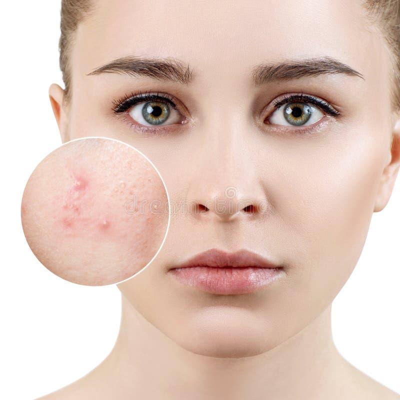 Mujer joven con la piel del acné en círculo del enfoque imagenes de archivo