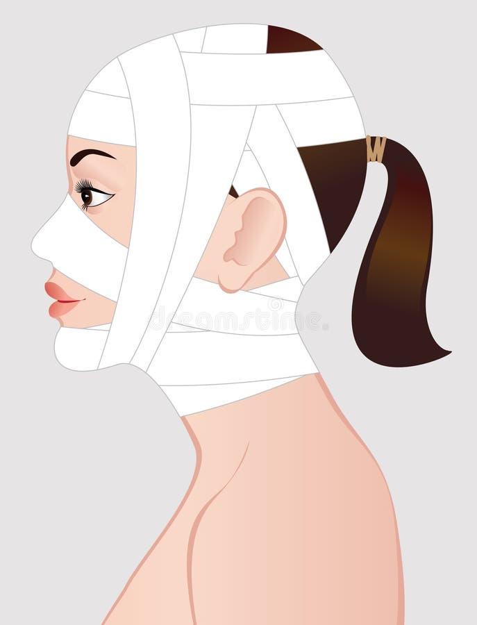 Mujer joven después de la cirugía cosmética ilustración del vector