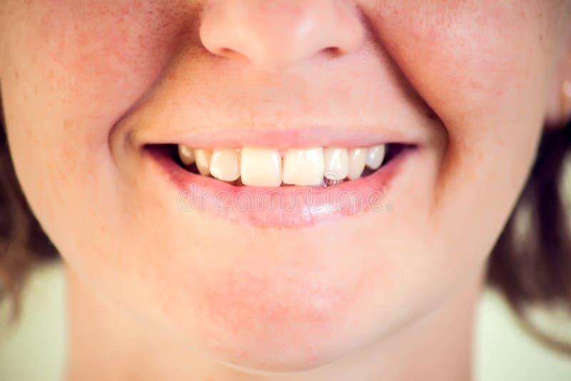 Mujer joven hermosa con los dientes sanos en el fondo blanco Ci?rrese encima de tiro fotos de archivo libres de regalías