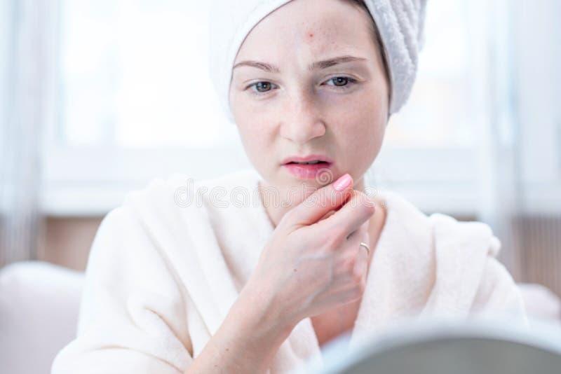 Mujer joven infeliz hermosa que mira acné en su cara Concepto de higiene y de cuidado para la piel fotos de archivo
