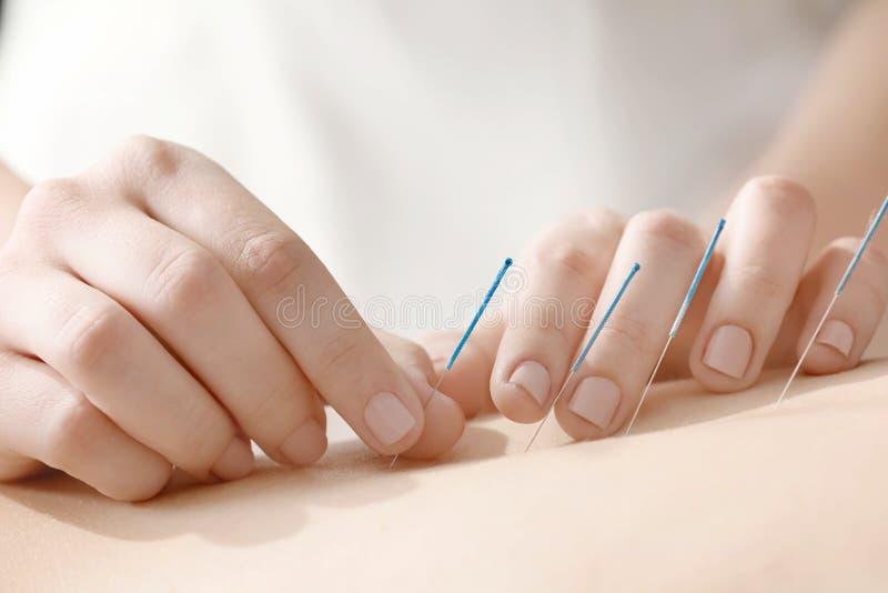 Mujer joven que experimenta el tratamiento de la acupuntura foto de archivo