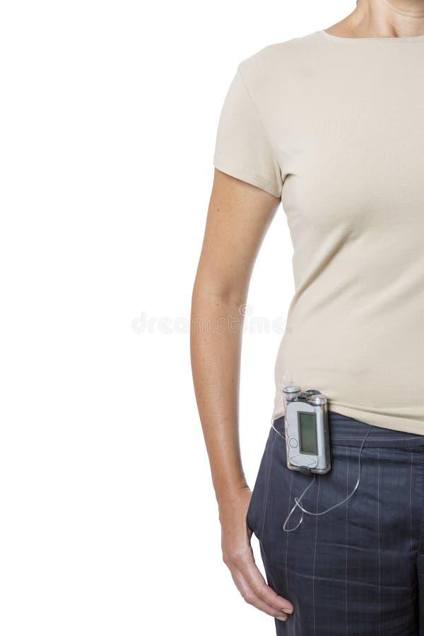 Mujer joven que lleva una bomba de la insulina foto de archivo