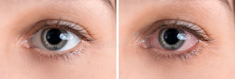 Mujer joven sin y con la rojez del ojo, primer imagen de archivo