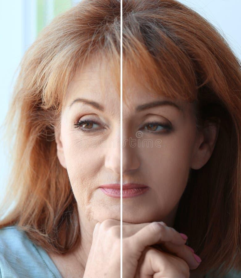 Mujer madura antes y después de la operación cosmética en fondo borroso fotos de archivo libres de regalías