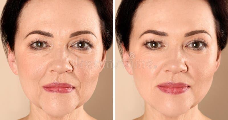 Mujer madura hermosa antes y después del procedimiento del biorevitalization en fondo beige foto de archivo libre de regalías