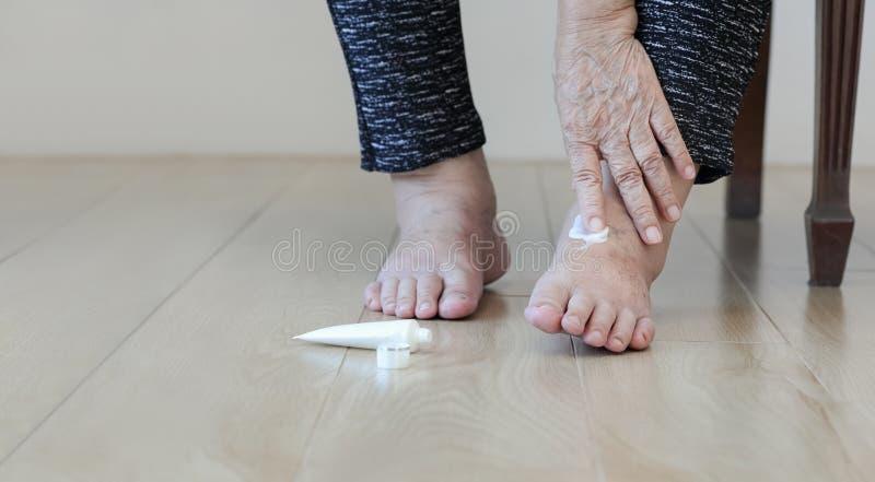 Mujer mayor que pone la crema en pies hinchados imágenes de archivo libres de regalías