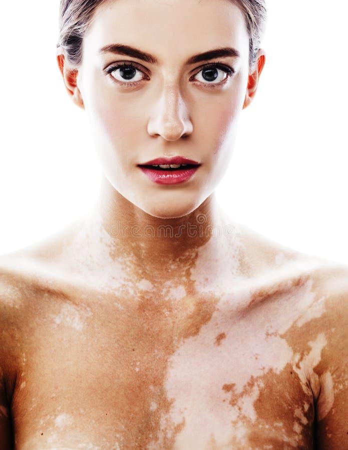 Mujer moderna real morena bonita joven con cierre del desease del vitiligo para arriba imágenes de archivo libres de regalías