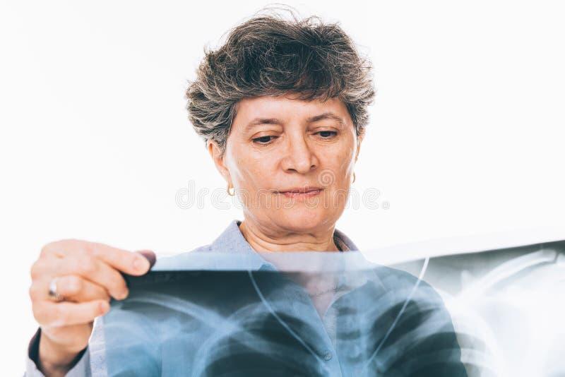 Mujer que mira la radiografía de los pulmones imagen de archivo libre de regalías