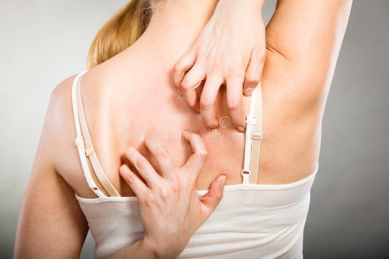 mujer que rasguña su parte posterior que pica con la erupción de la alergia fotografía de archivo libre de regalías