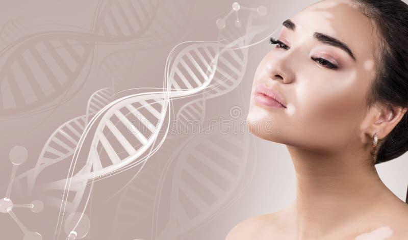 Mujer sensual joven con enfermedad del vitiligo en cadenas de la DNA imagen de archivo