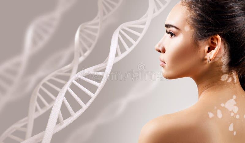 Mujer sensual joven con enfermedad del vitiligo en cadenas de la DNA imágenes de archivo libres de regalías