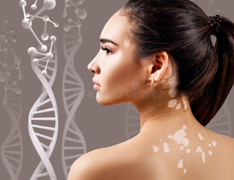 Mujer sensual joven con vitiligo en cadenas de la DNA fotografía de archivo