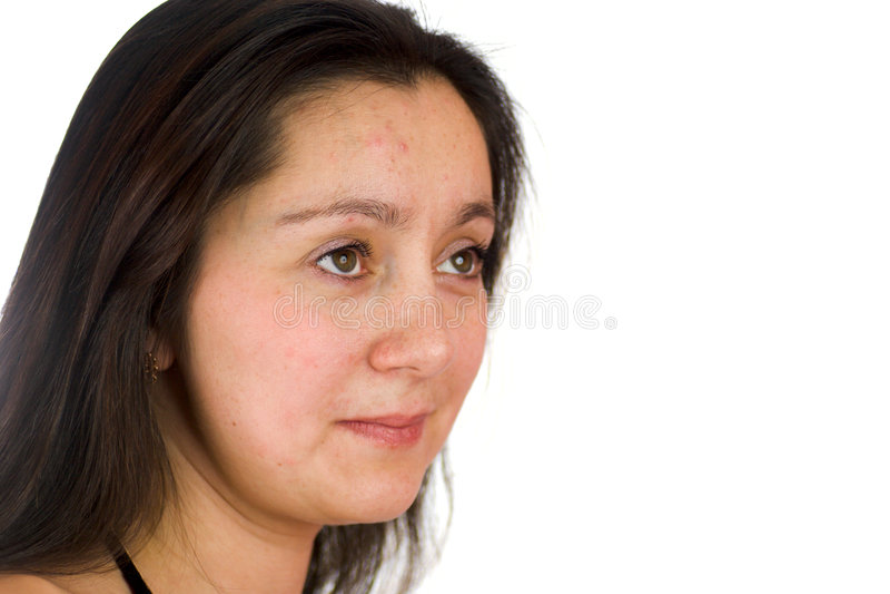 Mujer trastornada con acné
