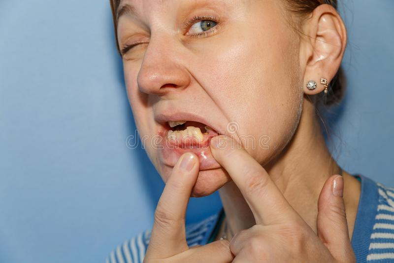 Mujeres sin el diente roto fotografía de archivo libre de regalías
