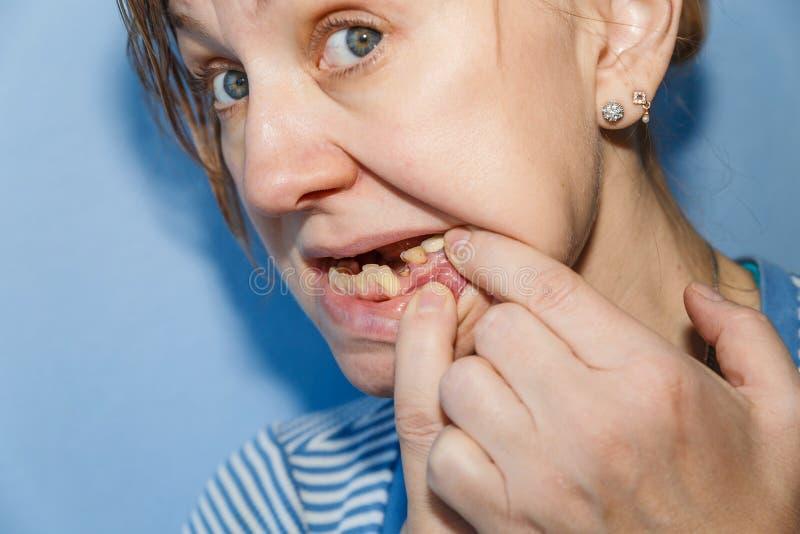 Mujeres sin el diente roto foto de archivo libre de regalías