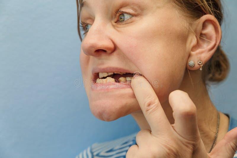 Mujeres sin el diente roto imagenes de archivo