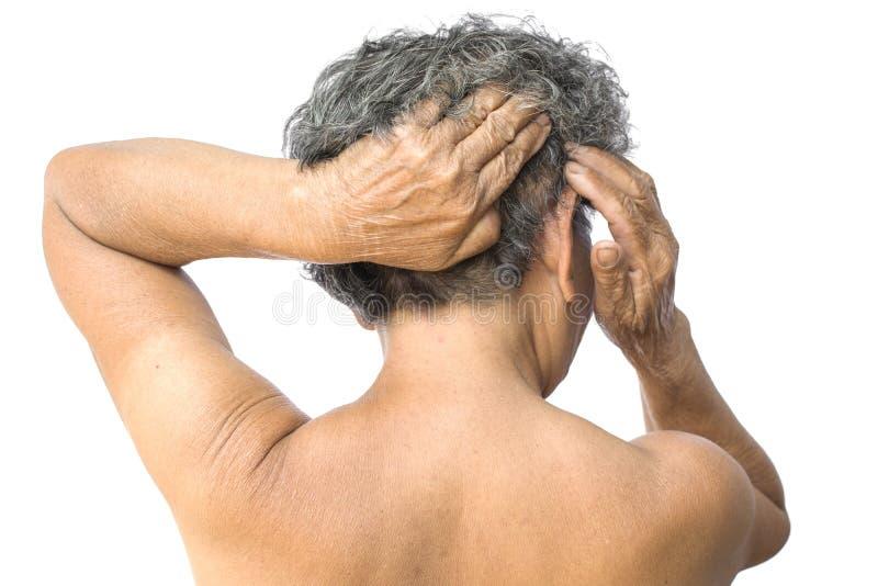 A mulher adulta sentiu muita ansiedade sobre a queda de cabelo e a edição itching da caspa imagens de stock royalty free