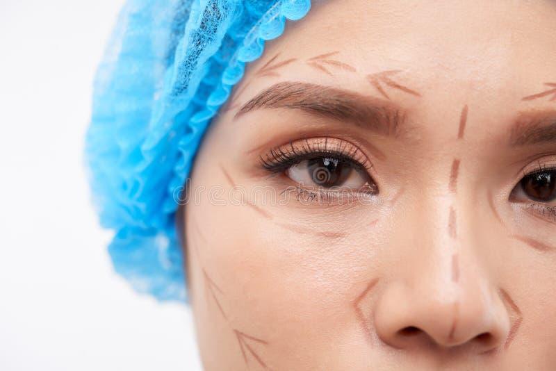 Mulher asiática preparada para a cirurgia decorativa fotos de stock royalty free