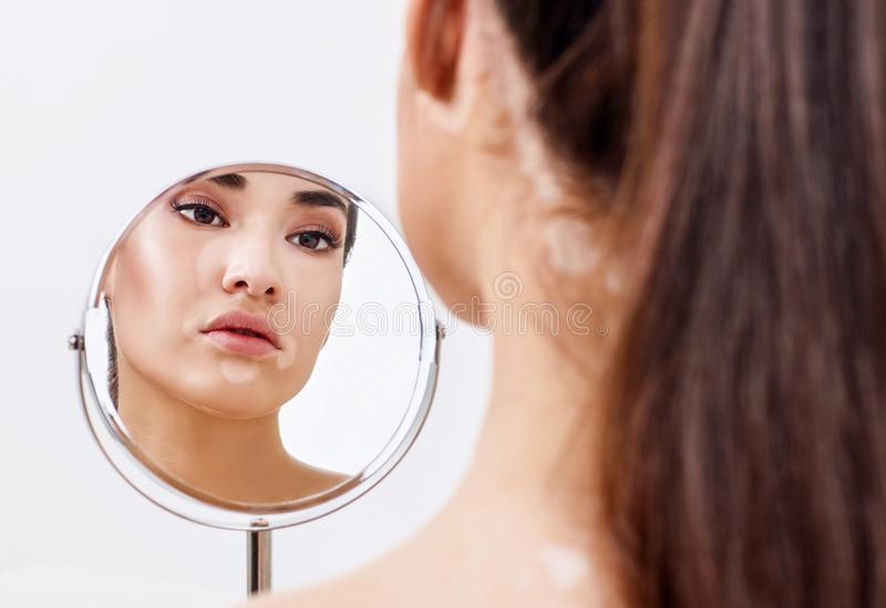 Mulher bonita com o vitiligo que olha no espelho imagem de stock