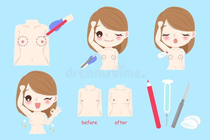 Mulher com aumento do peito ilustração do vetor