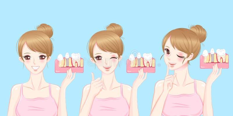 Mulher com conceito do implante do dente ilustração stock