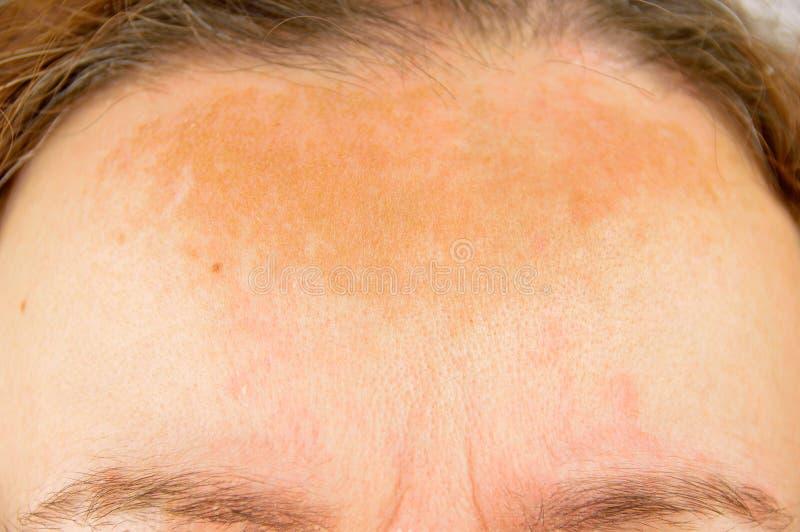 Mulher com dermatite atópica fotografia de stock royalty free
