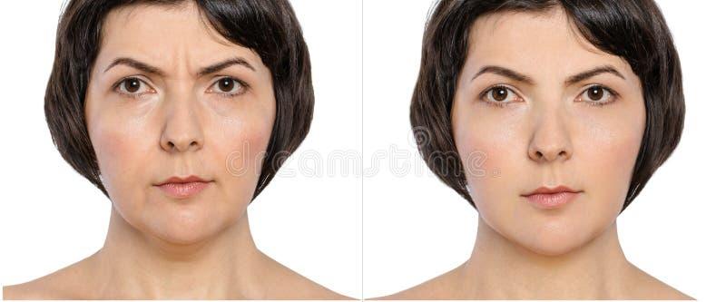 Mulher com e sem chamuscadelas do envelhecimento, queixo dobro, enrugamentos da preocupação, dobras nasolabial antes e depois do  imagens de stock