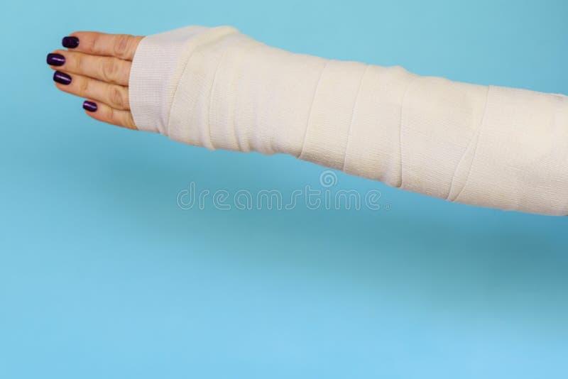 Mulher com o osso de braço quebrado no molde, mão emplastrada no fundo azul foto de stock royalty free